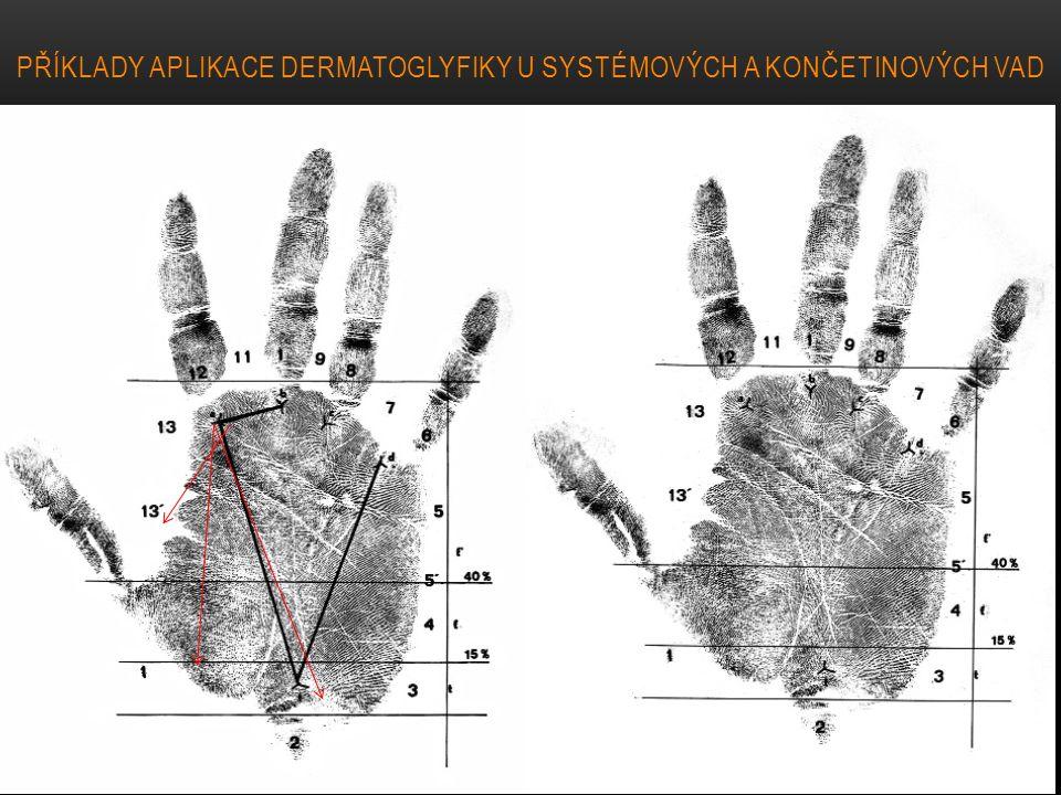 Příklady aplikace dermatoglyfiky u systémových a končetinových vad