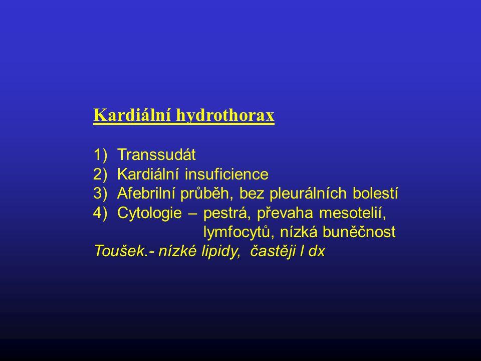 Kardiální hydrothorax