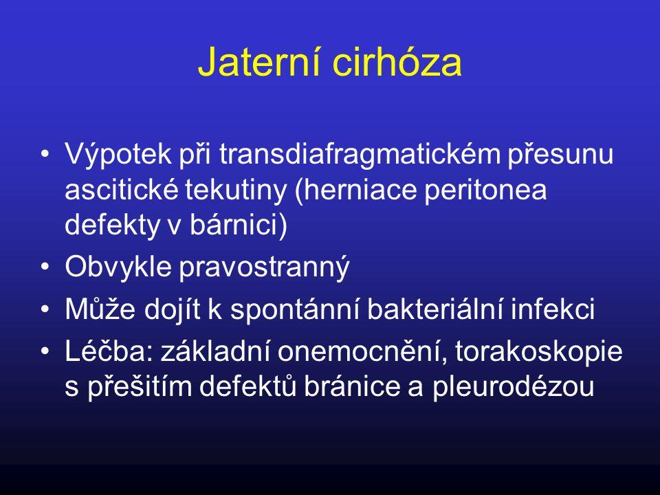 Jaterní cirhóza Výpotek při transdiafragmatickém přesunu ascitické tekutiny (herniace peritonea defekty v bárnici)