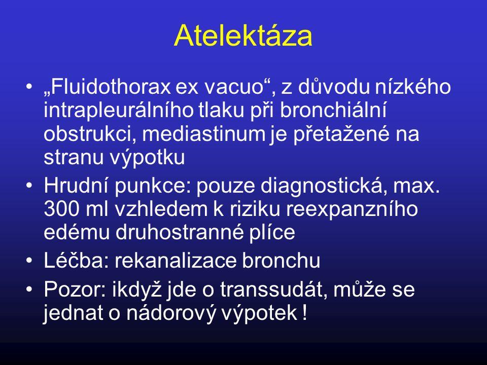 """Atelektáza """"Fluidothorax ex vacuo , z důvodu nízkého intrapleurálního tlaku při bronchiální obstrukci, mediastinum je přetažené na stranu výpotku."""