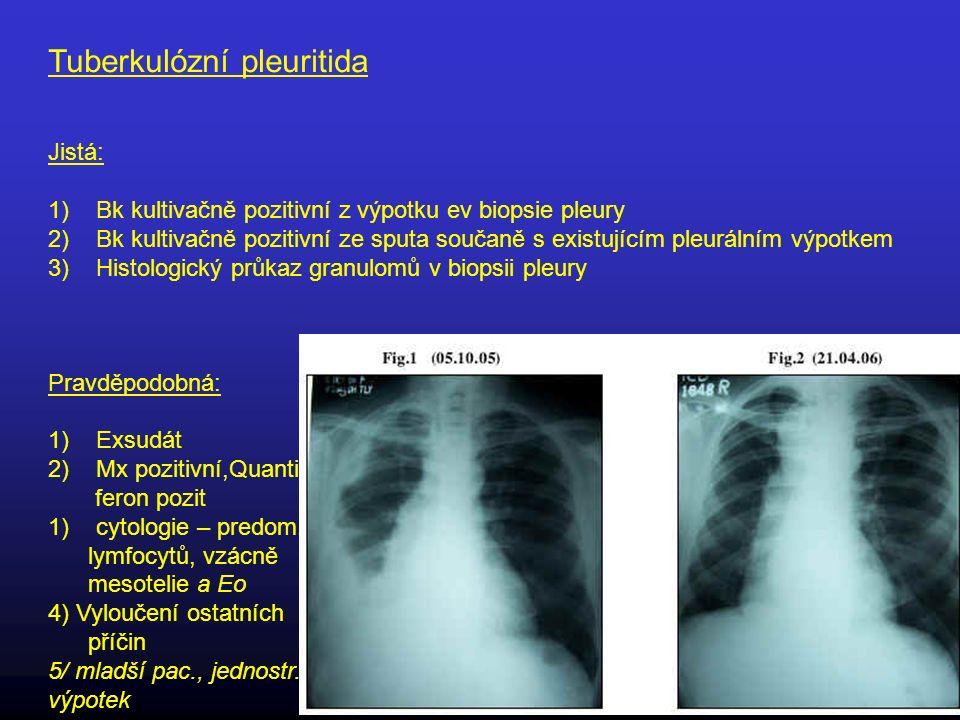 Tuberkulózní pleuritida