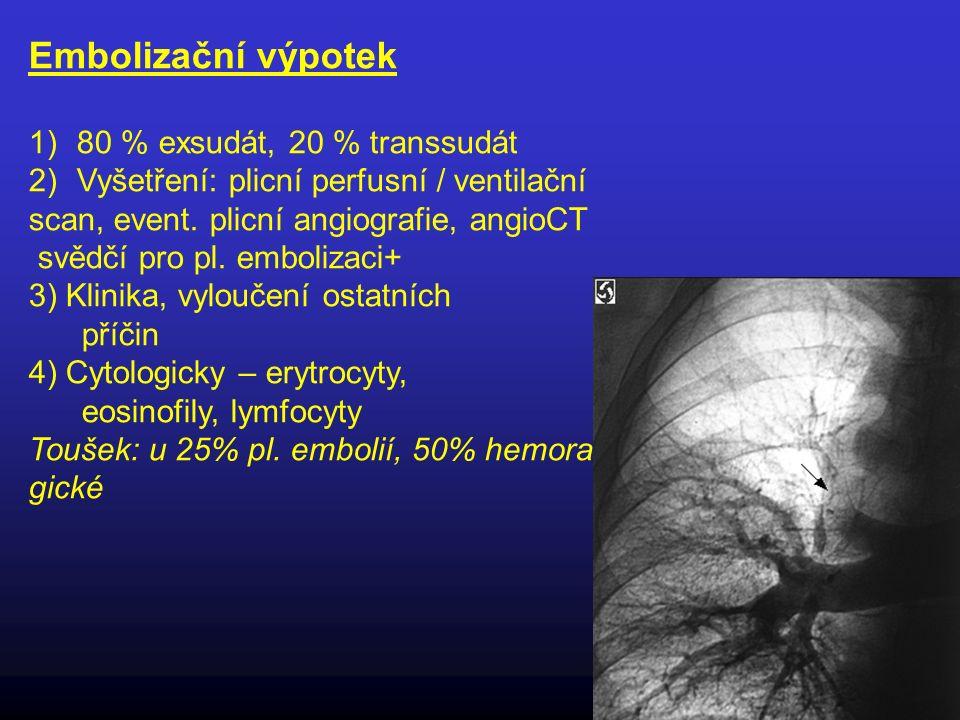 Embolizační výpotek 80 % exsudát, 20 % transsudát