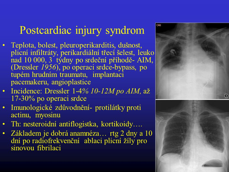 Postcardiac injury syndrom