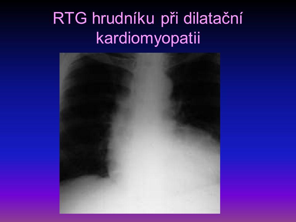 RTG hrudníku při dilatační kardiomyopatii