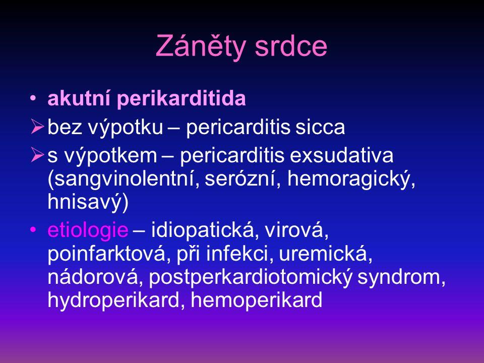 Záněty srdce akutní perikarditida bez výpotku – pericarditis sicca