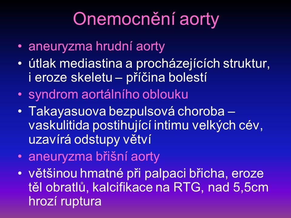 Onemocnění aorty aneuryzma hrudní aorty