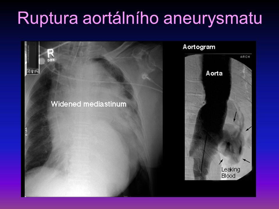 Ruptura aortálního aneurysmatu