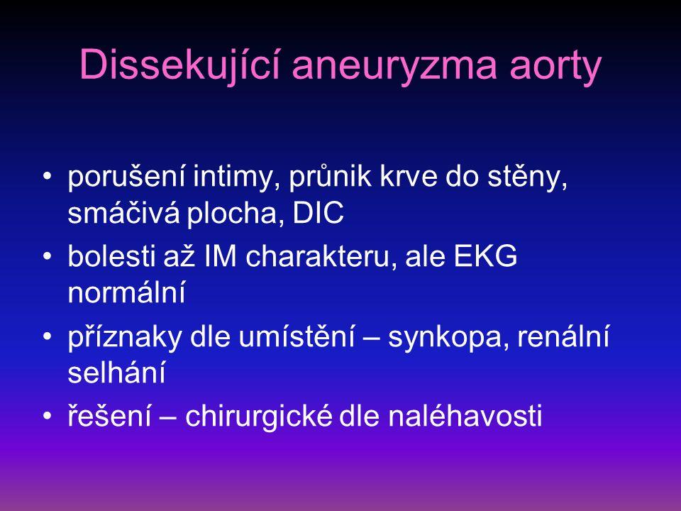 Dissekující aneuryzma aorty