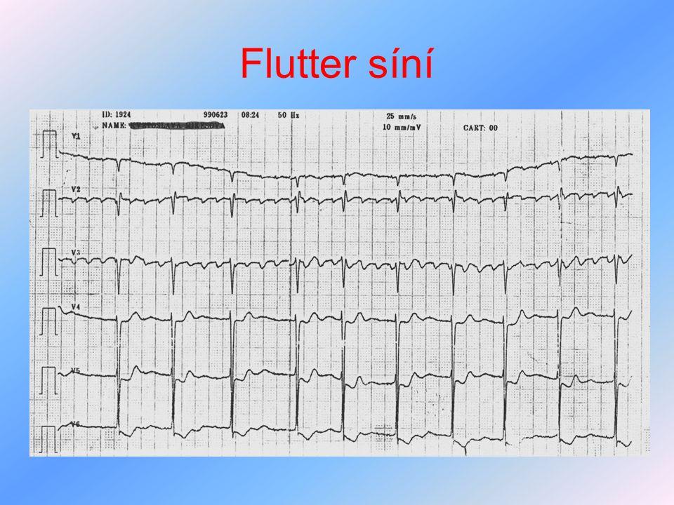 Flutter síní