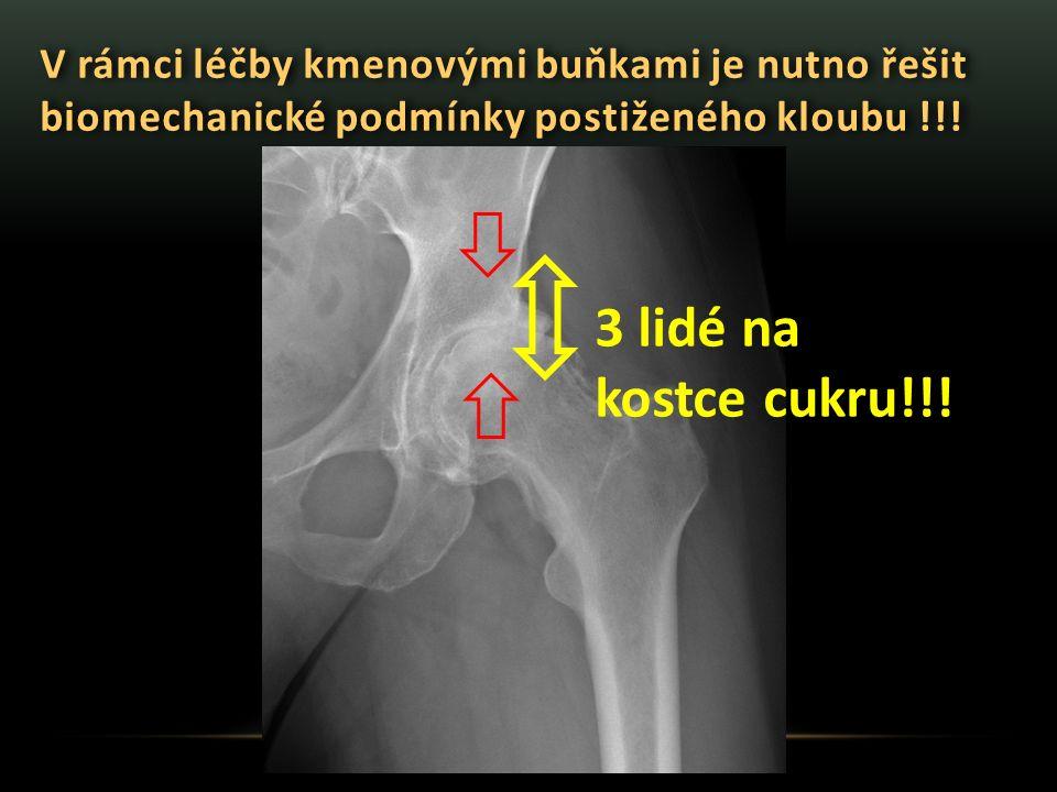 V rámci léčby kmenovými buňkami je nutno řešit biomechanické podmínky postiženého kloubu !!!