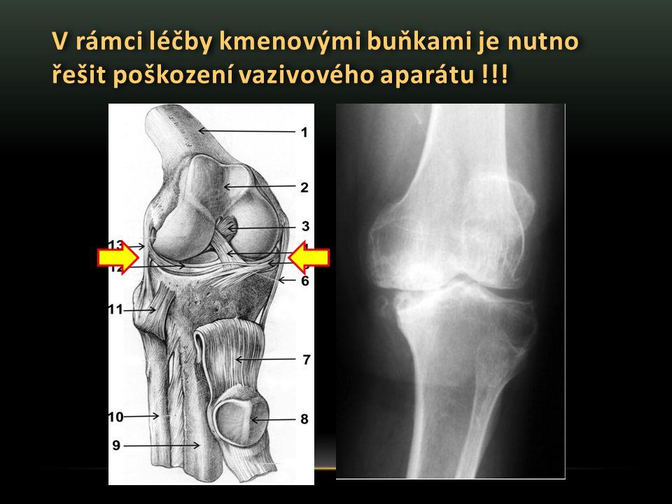 V rámci léčby kmenovými buňkami je nutno řešit poškození vazivového aparátu !!!