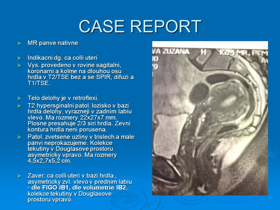 CASE REPORT MR panve nativne Indikacni dg. ca colli uteri