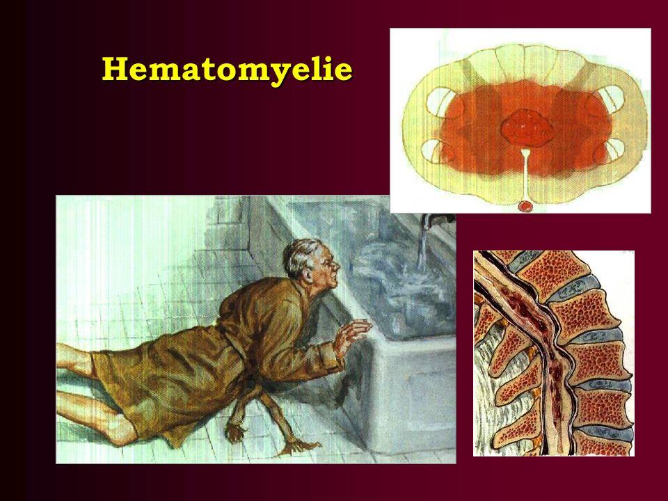 Hematomyelie
