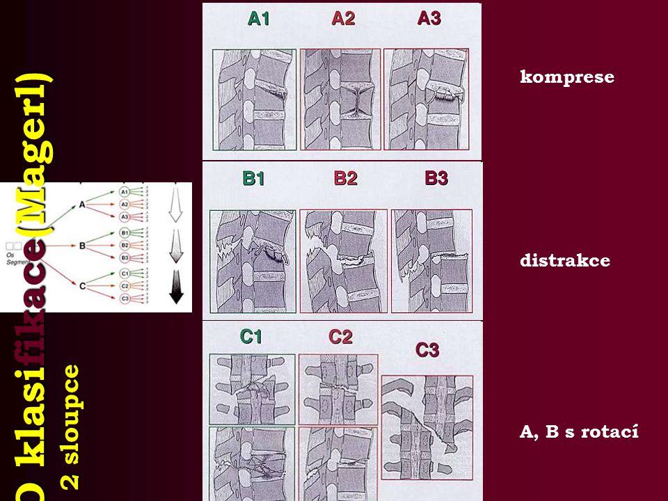 AO klasifikace(Magerl) 2 sloupce