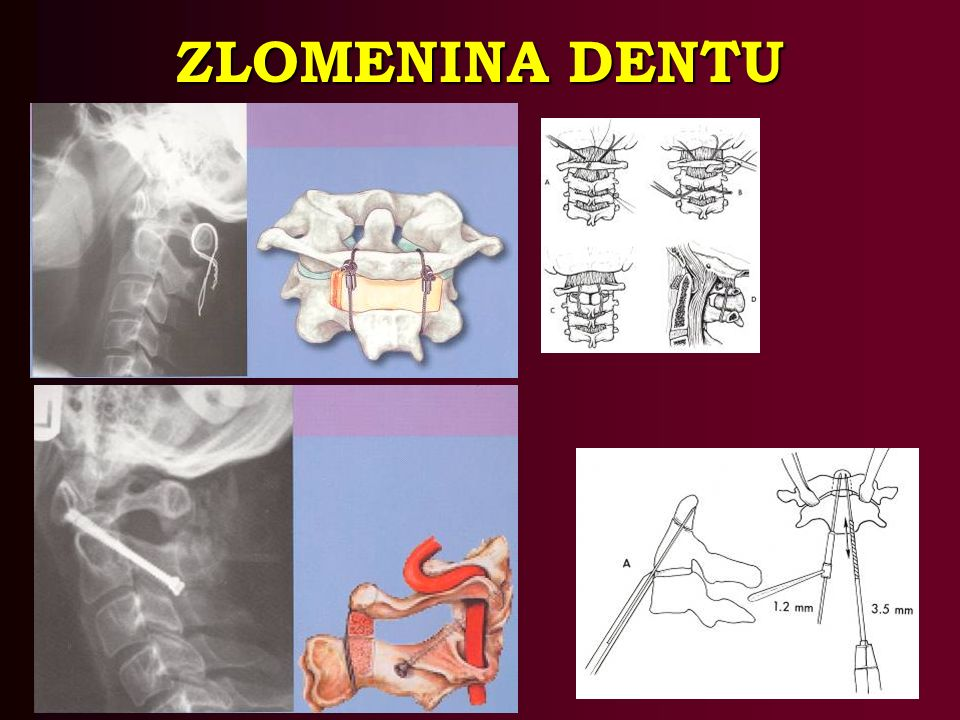 ZLOMENINA DENTU