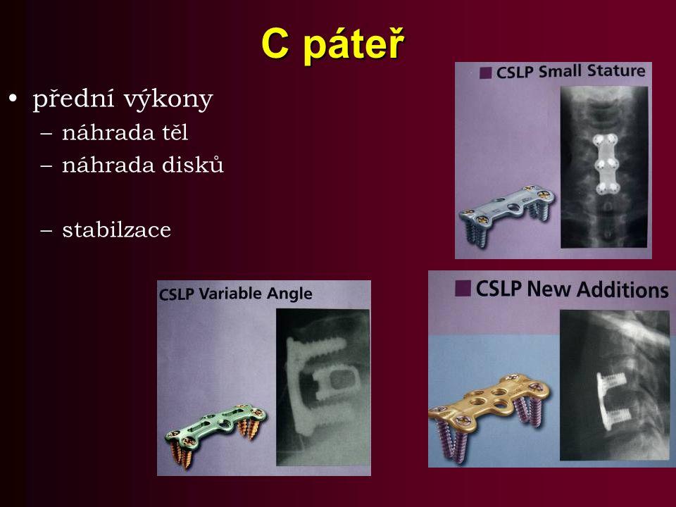 C páteř přední výkony náhrada těl náhrada disků stabilzace