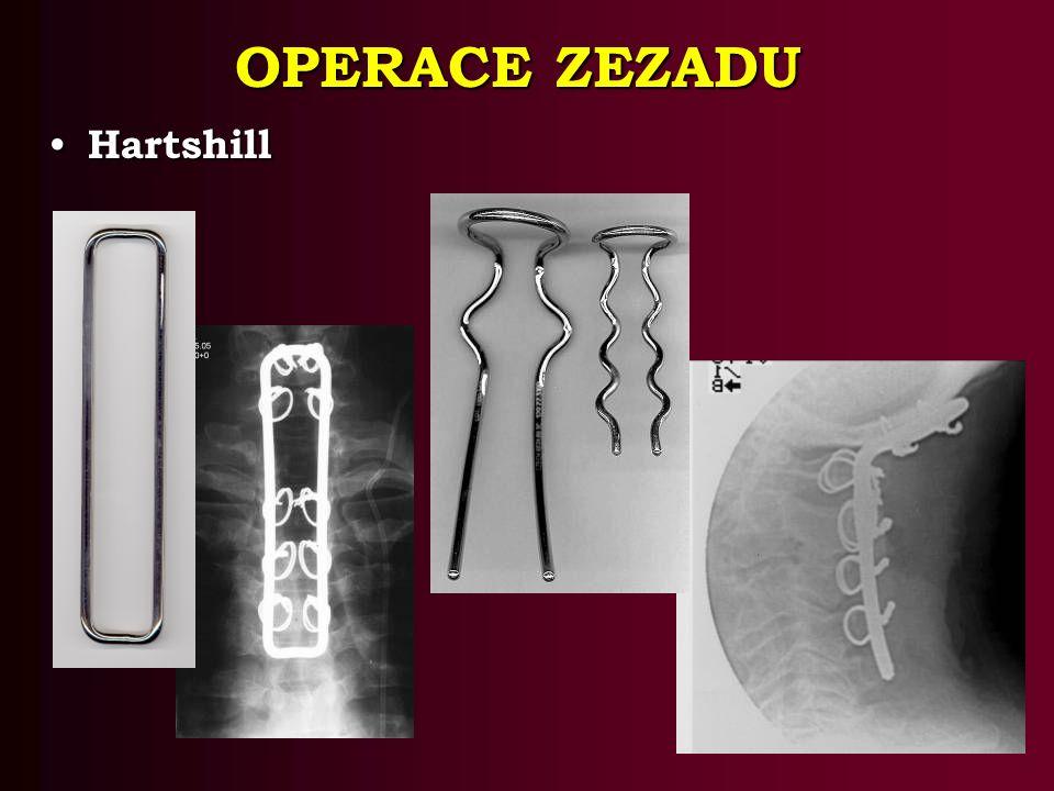 OPERACE ZEZADU Hartshill