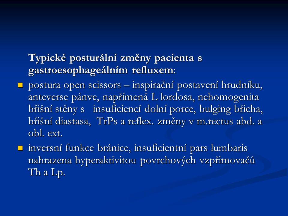 Typické posturální změny pacienta s gastroesophageálním refluxem: