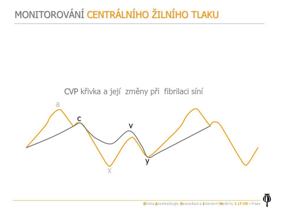 CVP křivka a její změny při fibrilaci síní