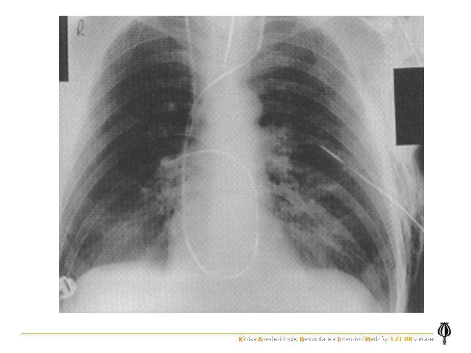 Klinika Anesteziologie, Resuscitace a Intenzivní Medicíny 1