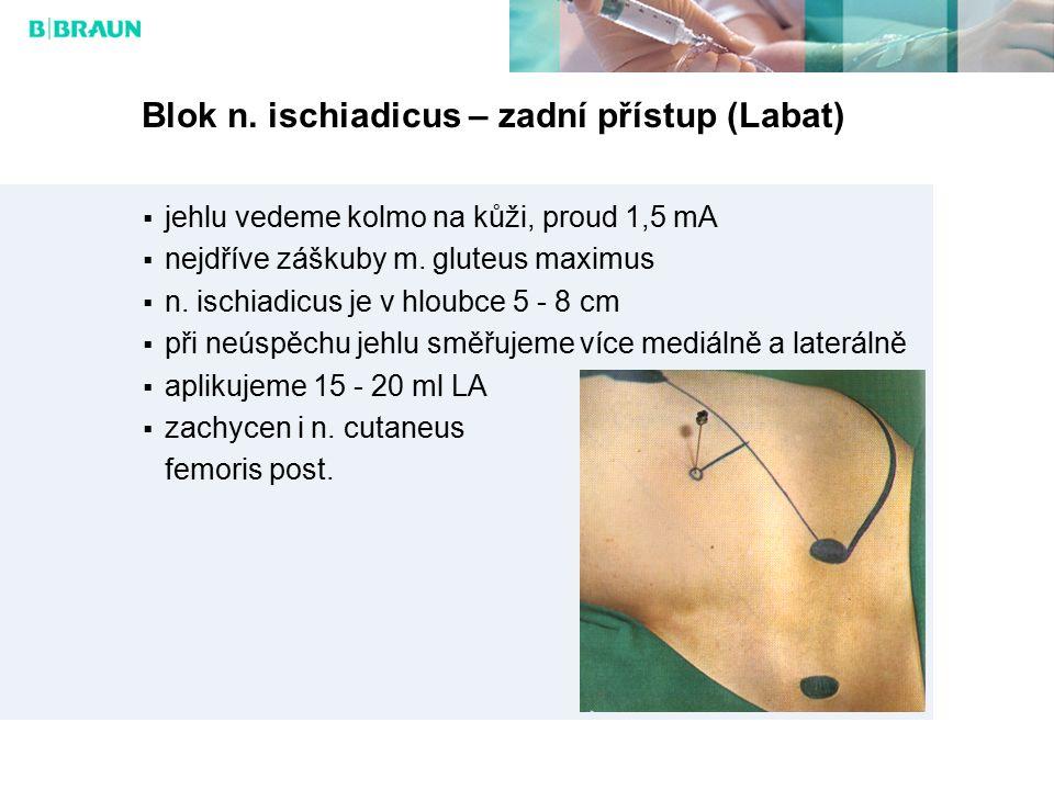 Blok n. ischiadicus – zadní přístup (Labat)