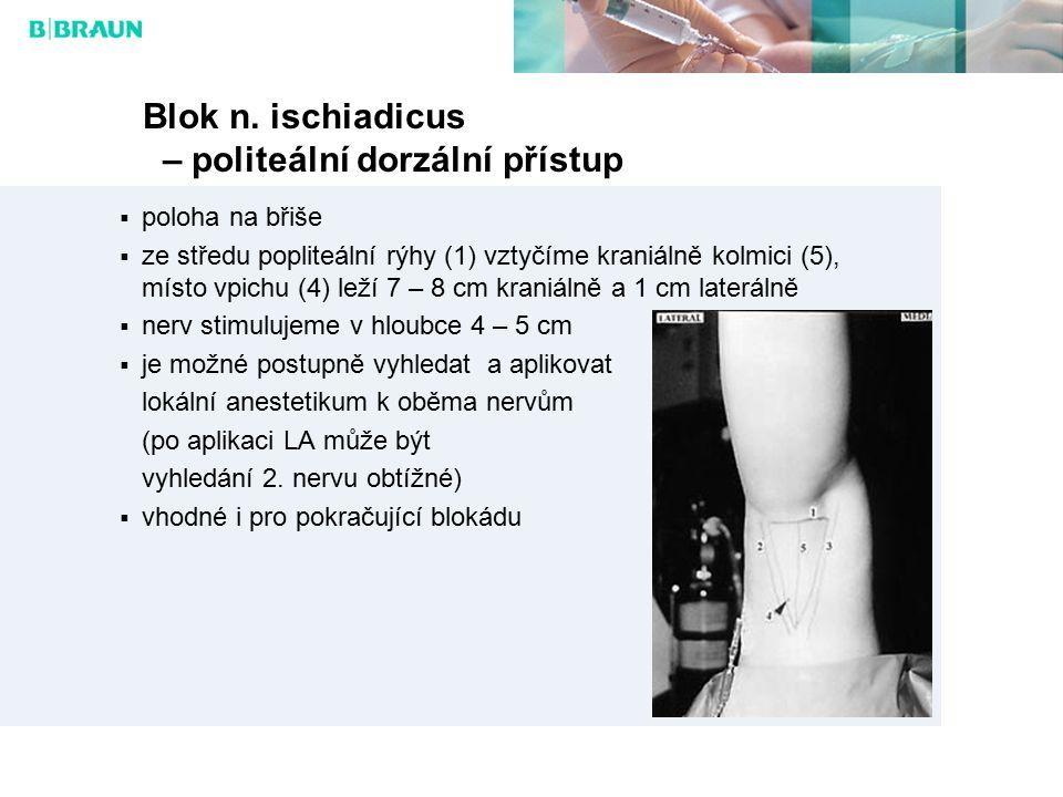 Blok n. ischiadicus – politeální dorzální přístup