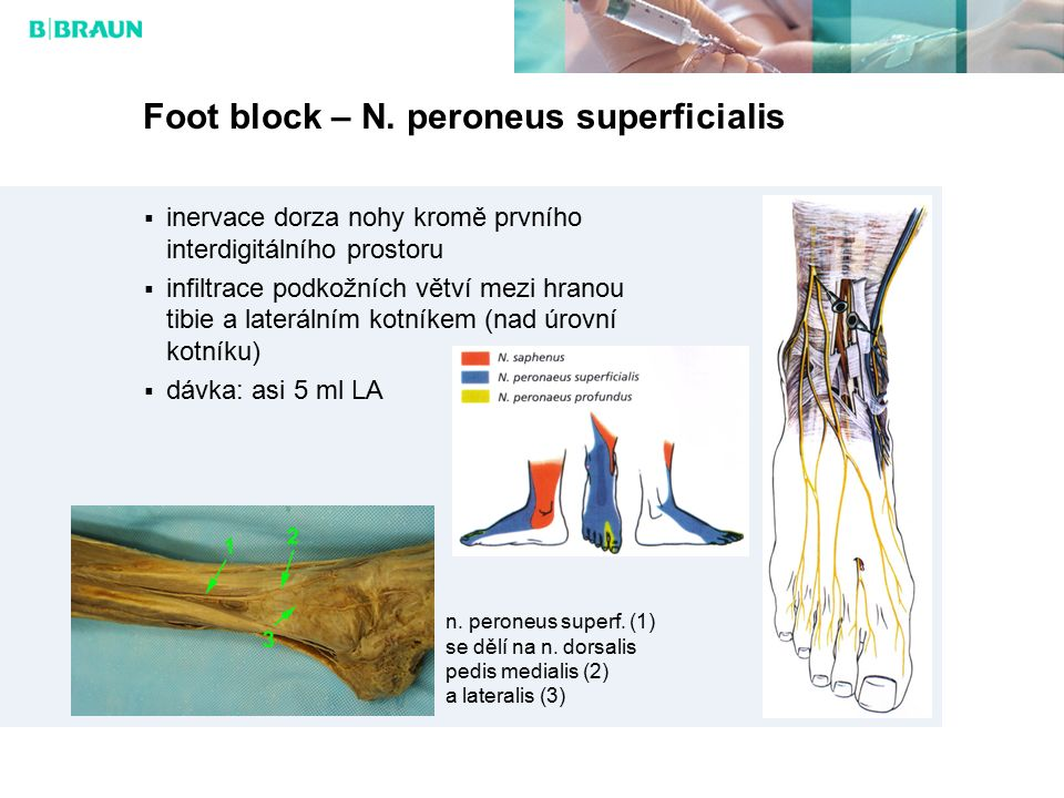 Foot block – N. peroneus superficialis