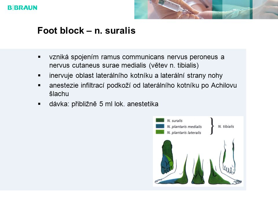 Foot block – n. suralis vzniká spojením ramus communicans nervus peroneus a nervus cutaneus surae medialis (větev n. tibialis)