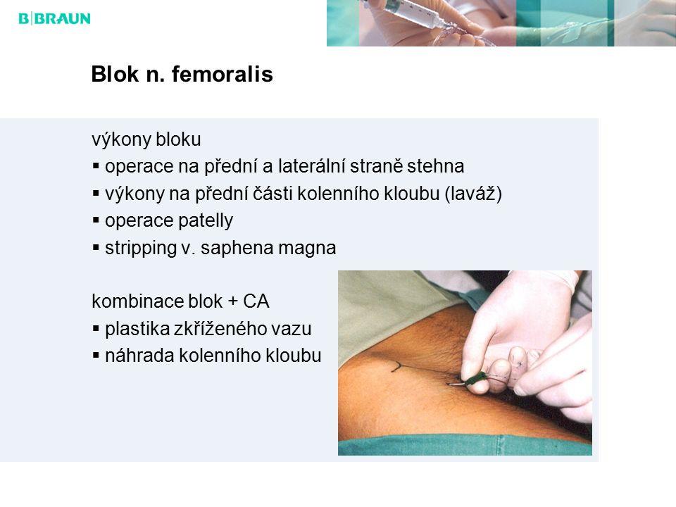 Blok n. femoralis výkony bloku