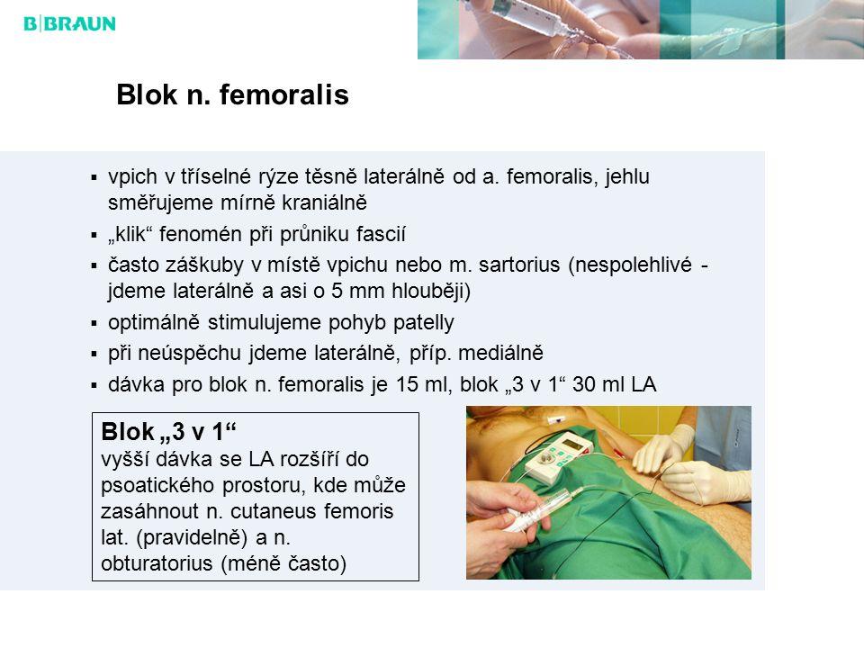 """Blok n. femoralis Blok """"3 v 1"""