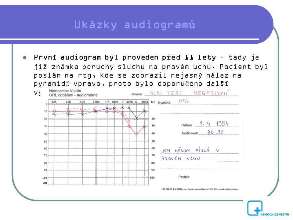 Ukázky audiogramů
