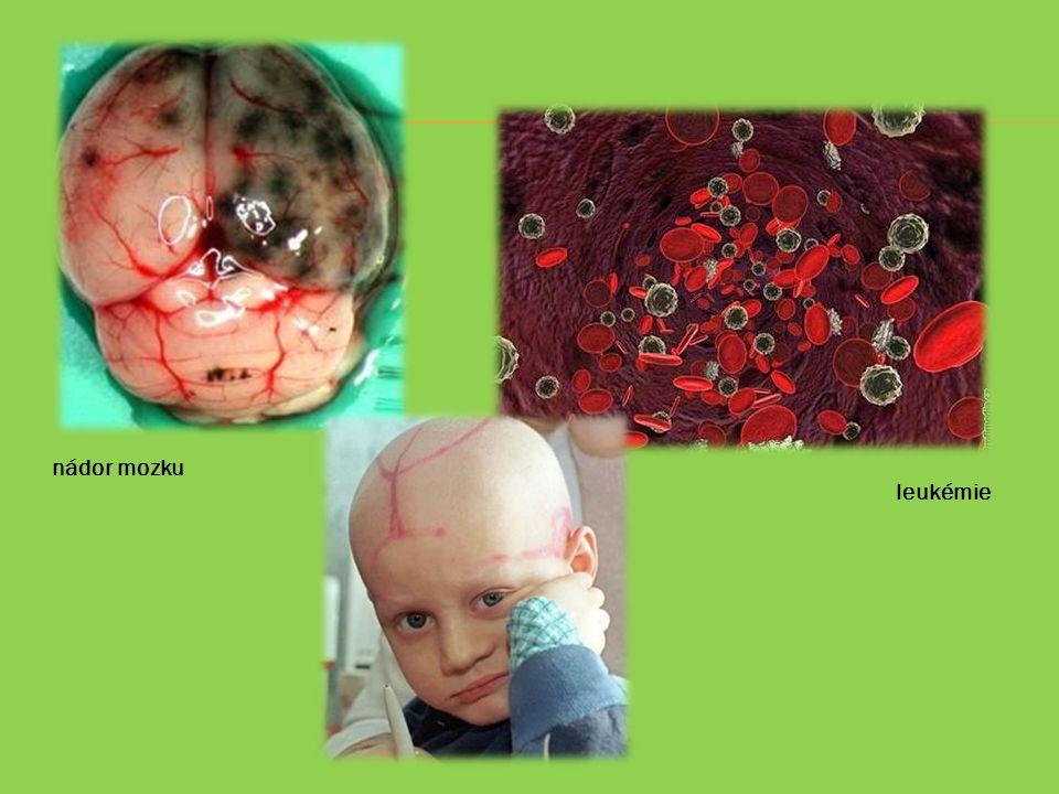 nádor mozku leukémie