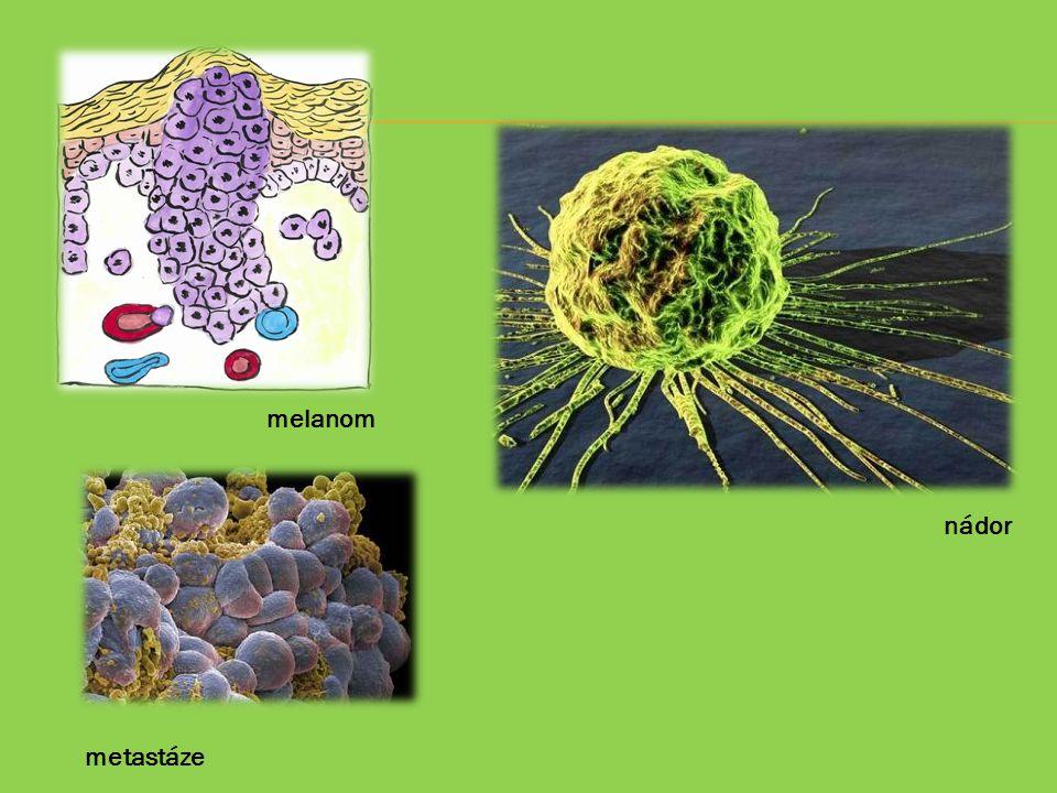 melanom nádor metastáze