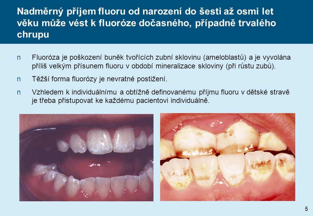 Nadměrný příjem fluoru od narození do šesti až osmi let věku může vést k fluoróze dočasného, případně trvalého chrupu
