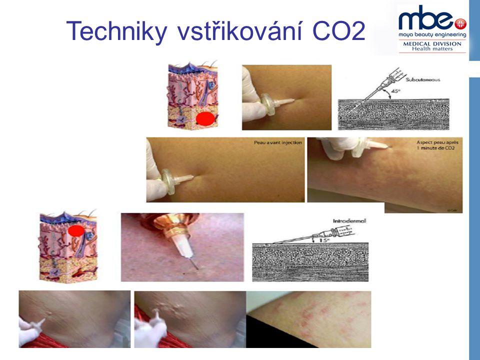 Techniky vstřikování CO2
