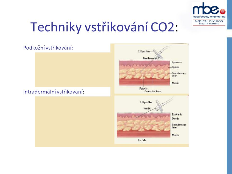 Techniky vstřikování CO2: