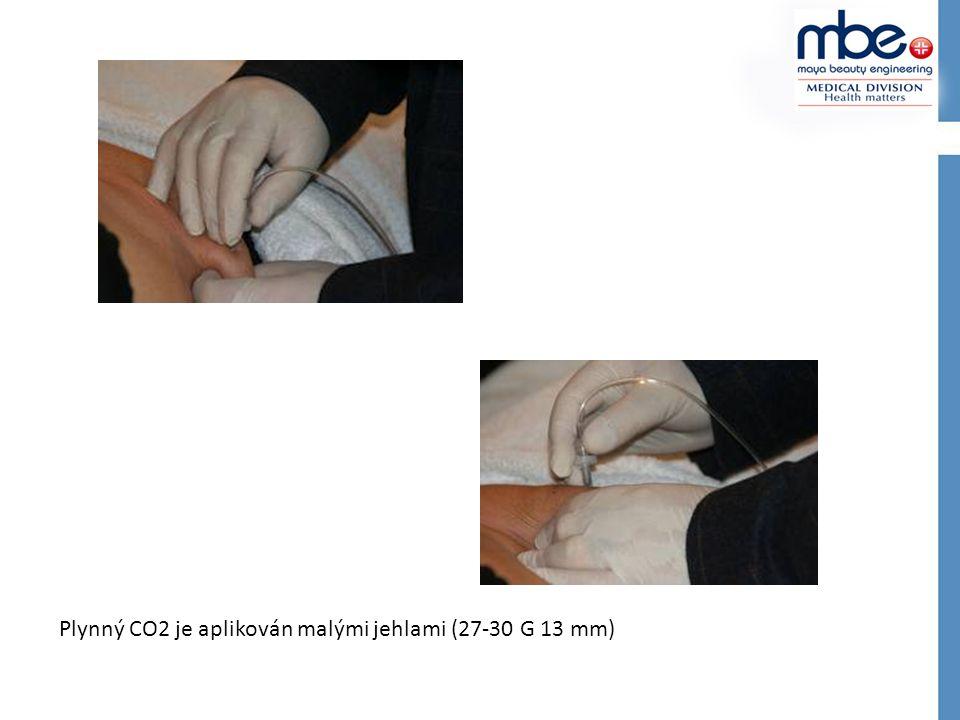 Plynný CO2 je aplikován malými jehlami (27-30 G 13 mm)