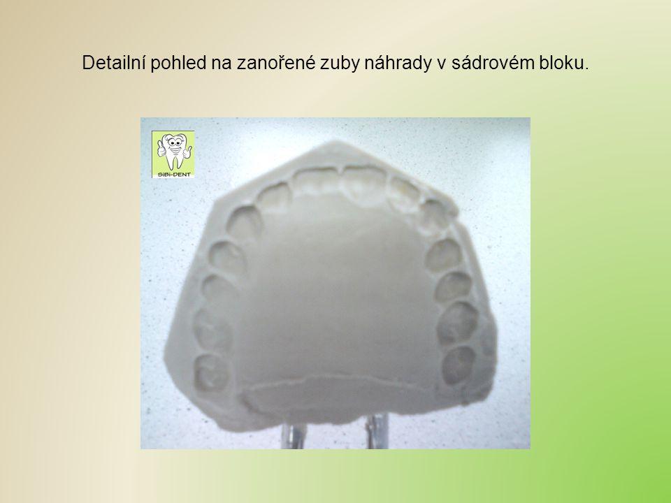 Detailní pohled na zanořené zuby náhrady v sádrovém bloku.