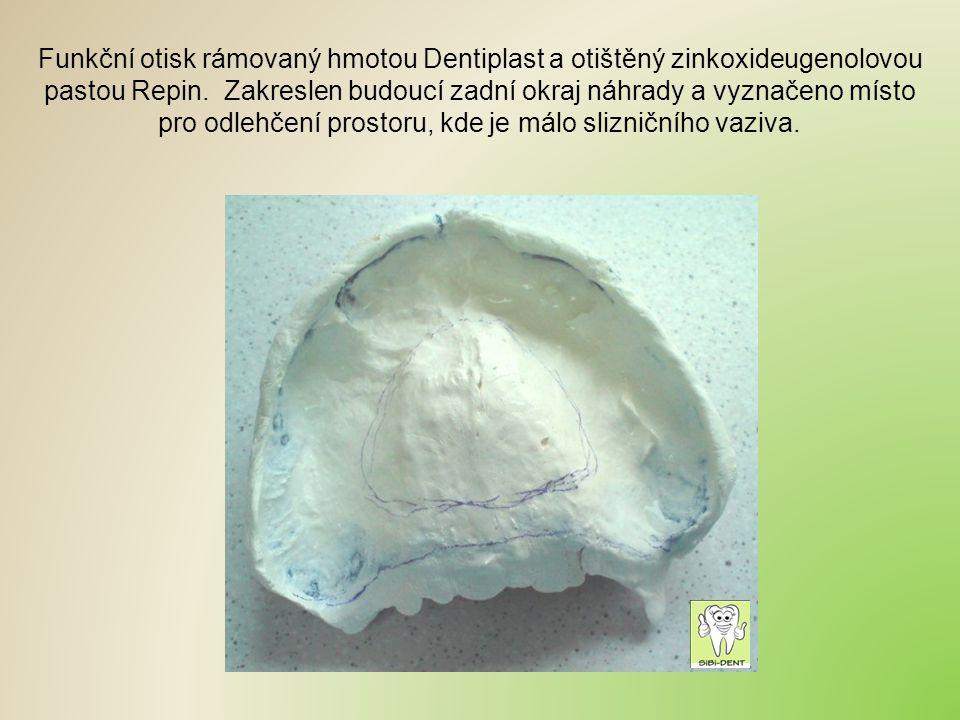 Funkční otisk rámovaný hmotou Dentiplast a otištěný zinkoxideugenolovou pastou Repin.