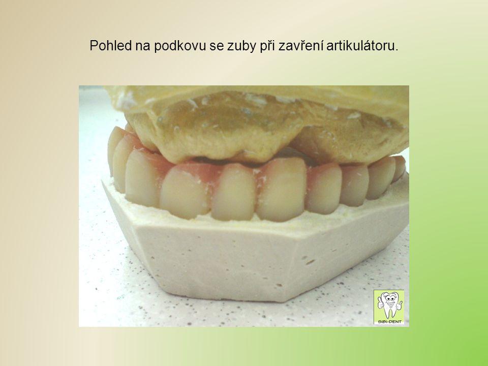 Pohled na podkovu se zuby při zavření artikulátoru.