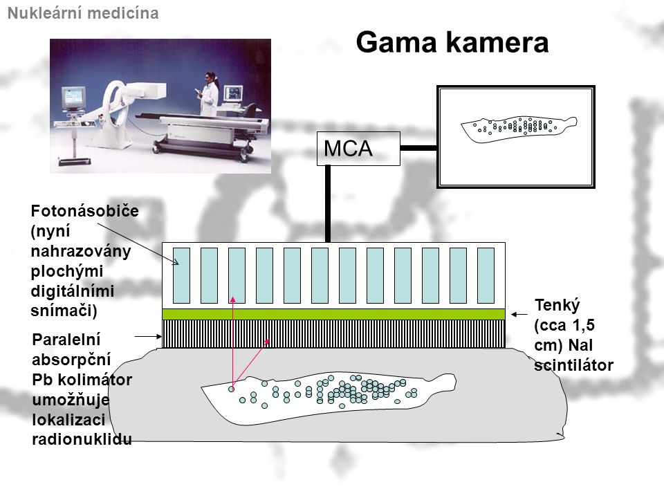 Gama kamera MCA Nukleární medicína