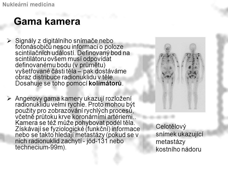 Nukleární medicína Gama kamera.