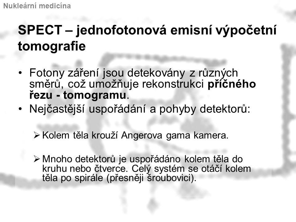 SPECT – jednofotonová emisní výpočetní tomografie