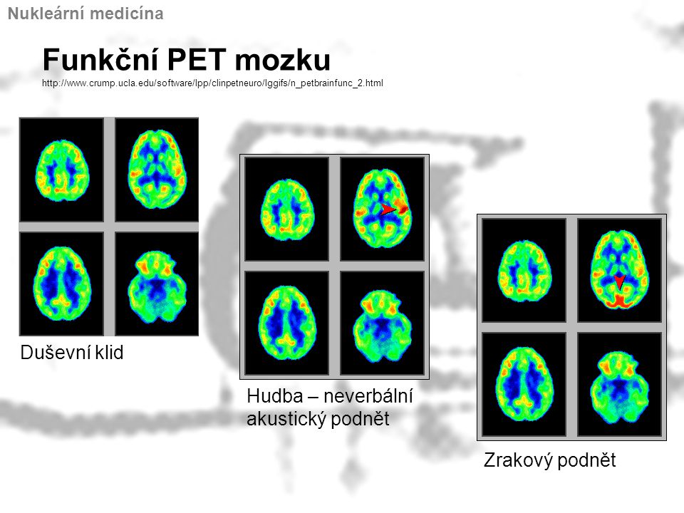 Nukleární medicína Funkční PET mozku http://www.crump.ucla.edu/software/lpp/clinpetneuro/lggifs/n_petbrainfunc_2.html.