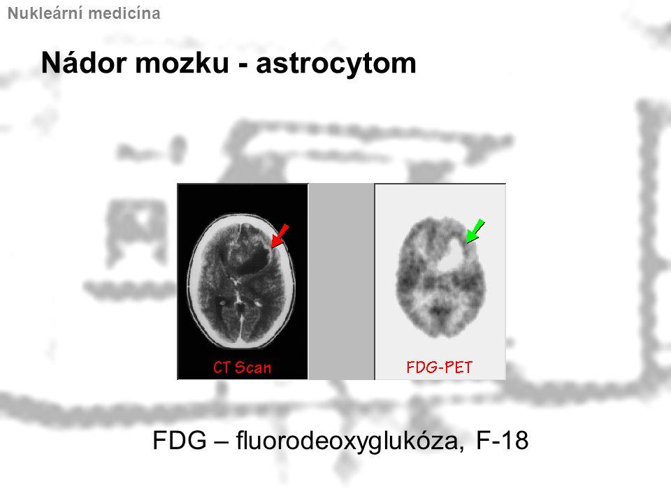 Nádor mozku - astrocytom