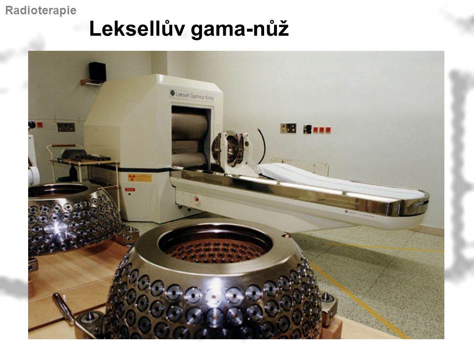 Radioterapie Leksellův gama-nůž