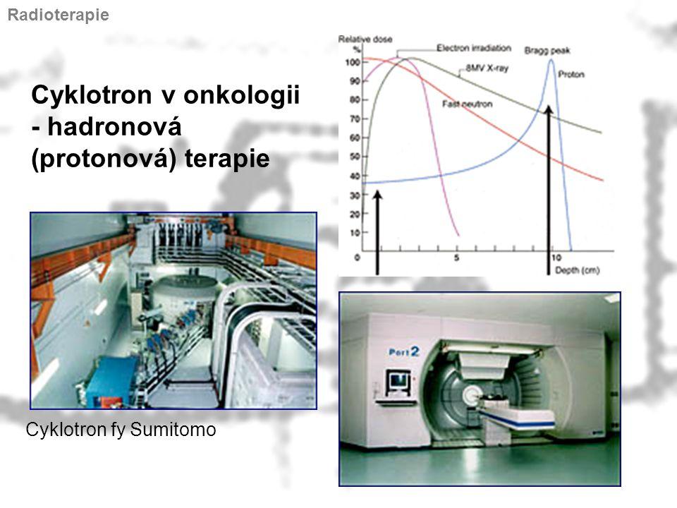Cyklotron v onkologii - hadronová (protonová) terapie
