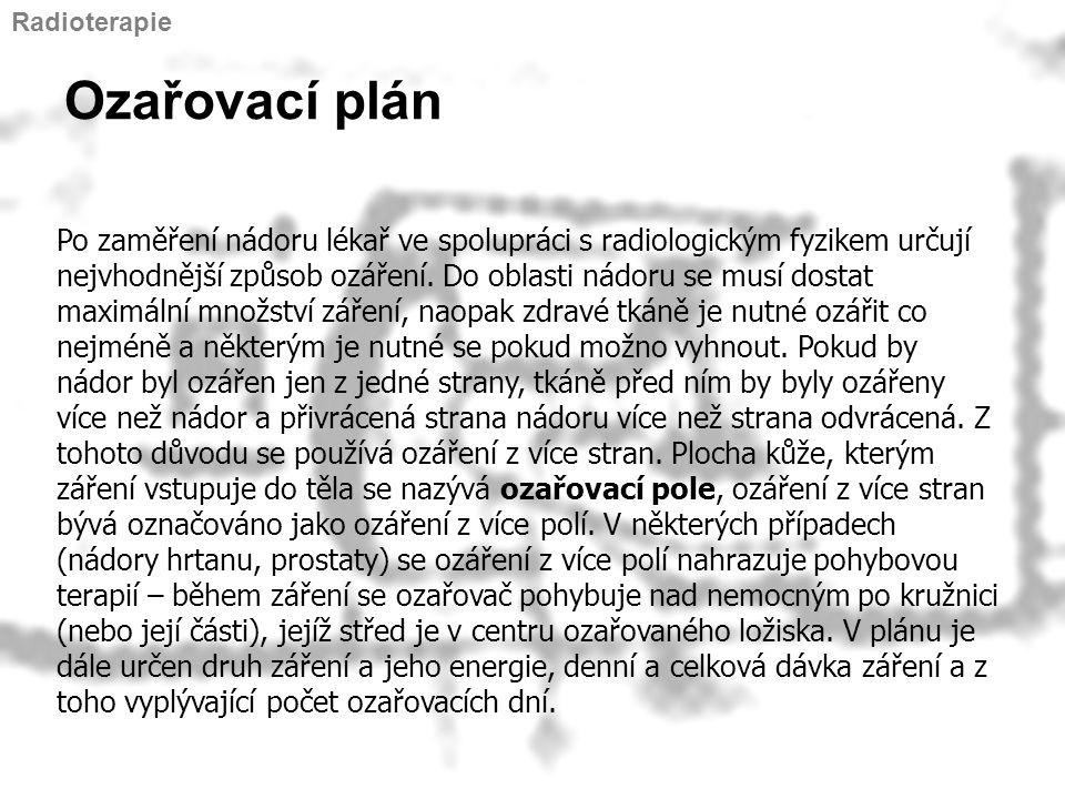 Radioterapie Ozařovací plán.