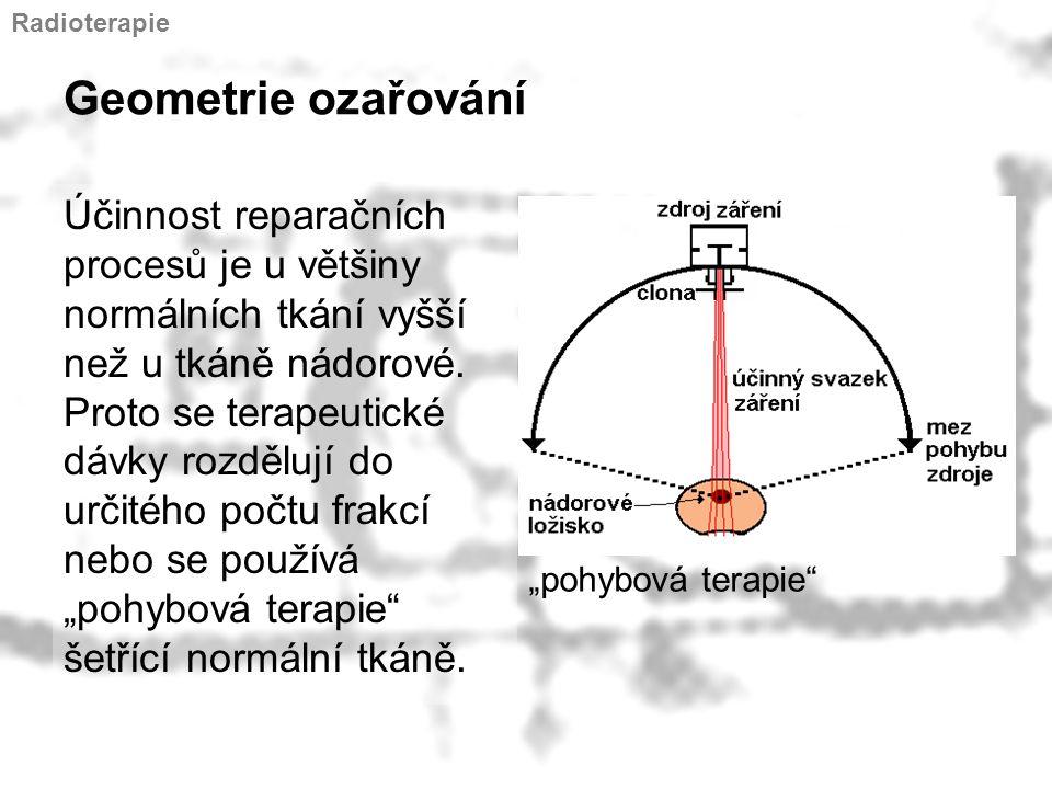Radioterapie Geometrie ozařování.