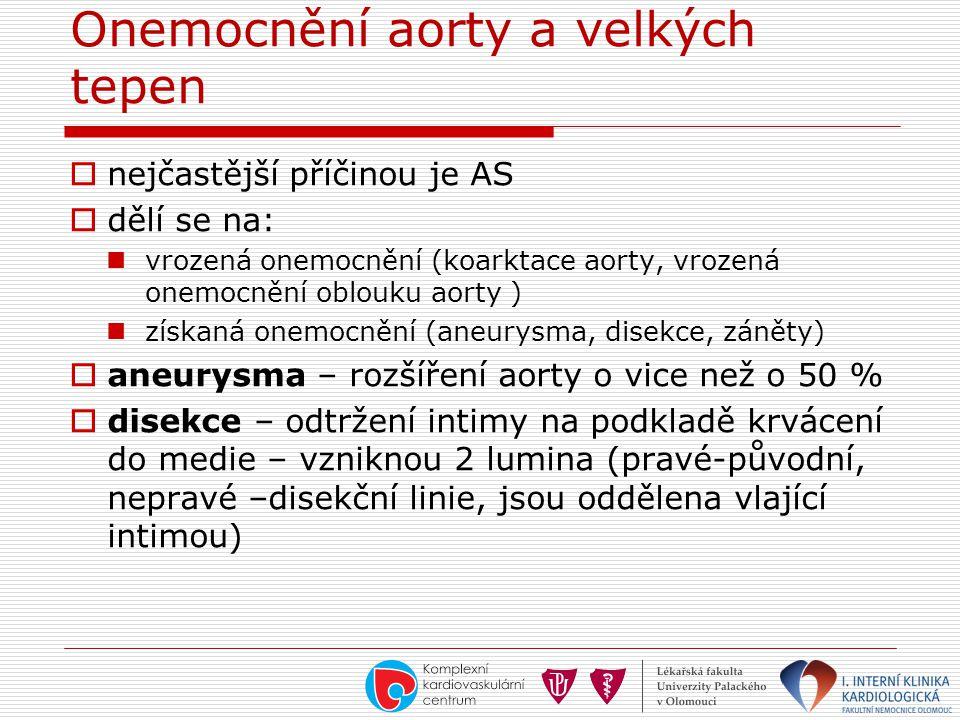 Onemocnění aorty a velkých tepen